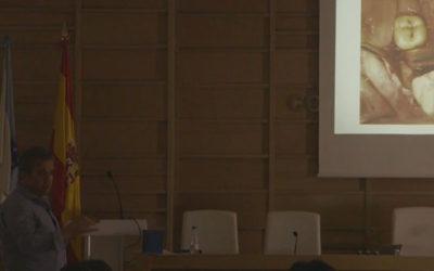 Video curso: La implantología dental