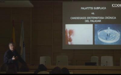 Patologías en la mucosa oral